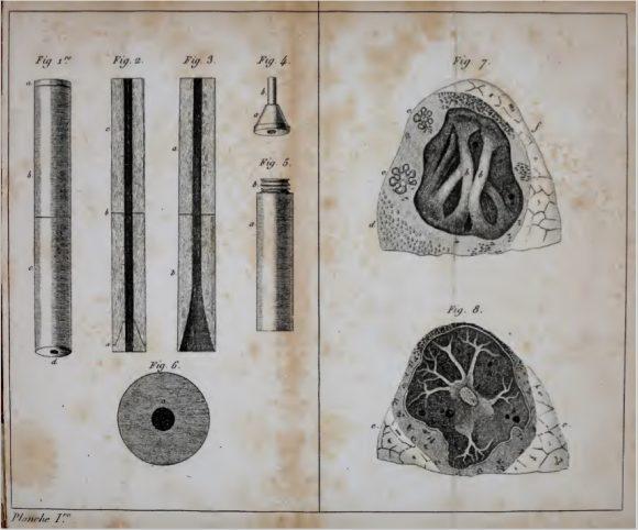 Historia del primer estetoscopio: fue la física, no el pudor