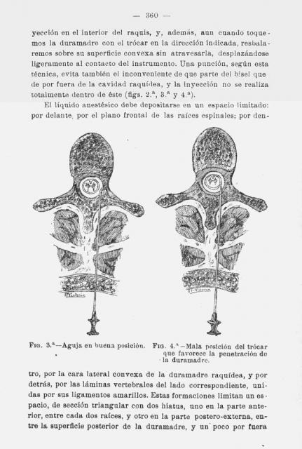 Una página del artículo del Dr. Pagés, en la Revista de Sanidad Militar (1921).